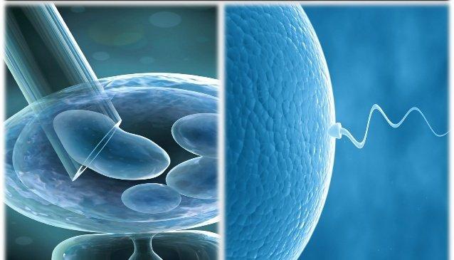 Is In-Vitro Fertilization for You?