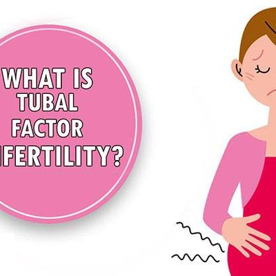 What Do You Need to Know About Tubal Factor Infertility?