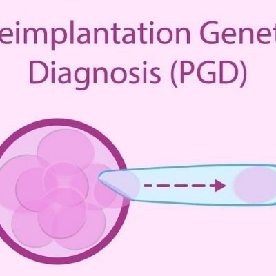 Karyomapping – A Boon For PGD Patients